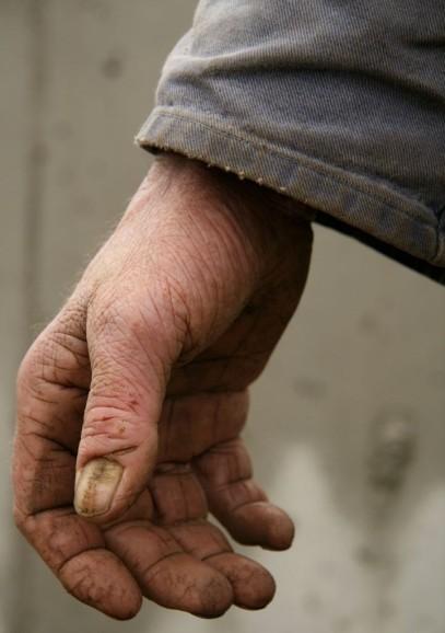 hand 2a